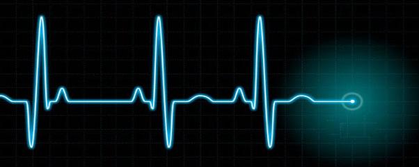 Kalpte Ritim Bozukluğu